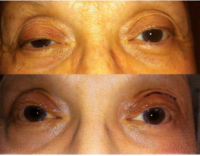 Eyelid lift on right side