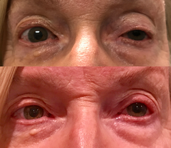 Left eyelid lift