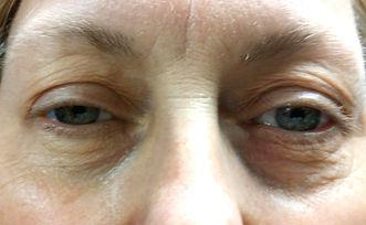 Drooping eyelids photo