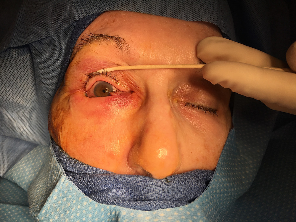 Eyelid Cancer Denver