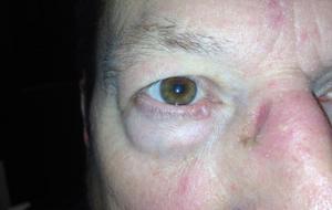 Eyelid Cancer treatment denver