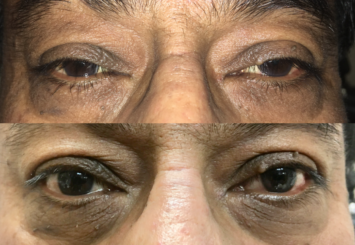 Eyelid lift in Denver