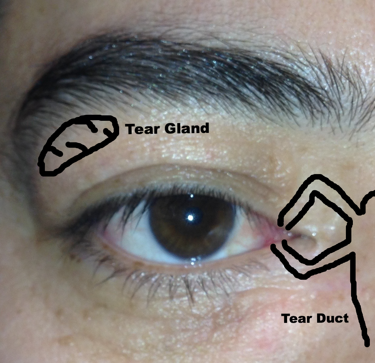 Denver Eyelid Specialist: Do I Have A Blocked Tear Duct?