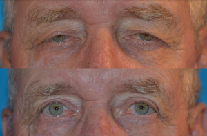 eyelid surgeon in denver
