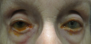 loose eyelids
