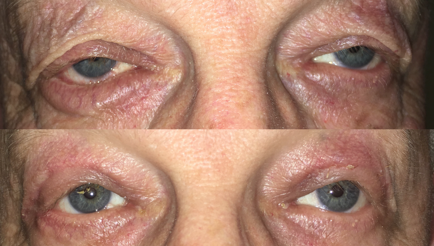 Upper eyelid lift