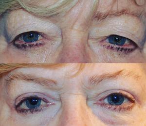 Eyelid doctor denver