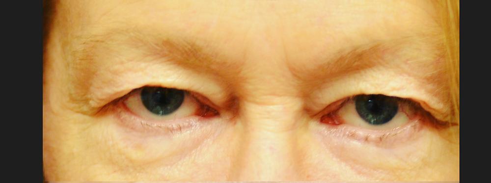Extra eyelid skin blocking eye
