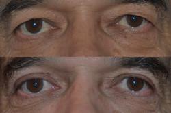 eyelidsurgeondenver