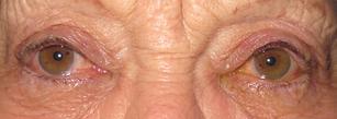 Open eyelids