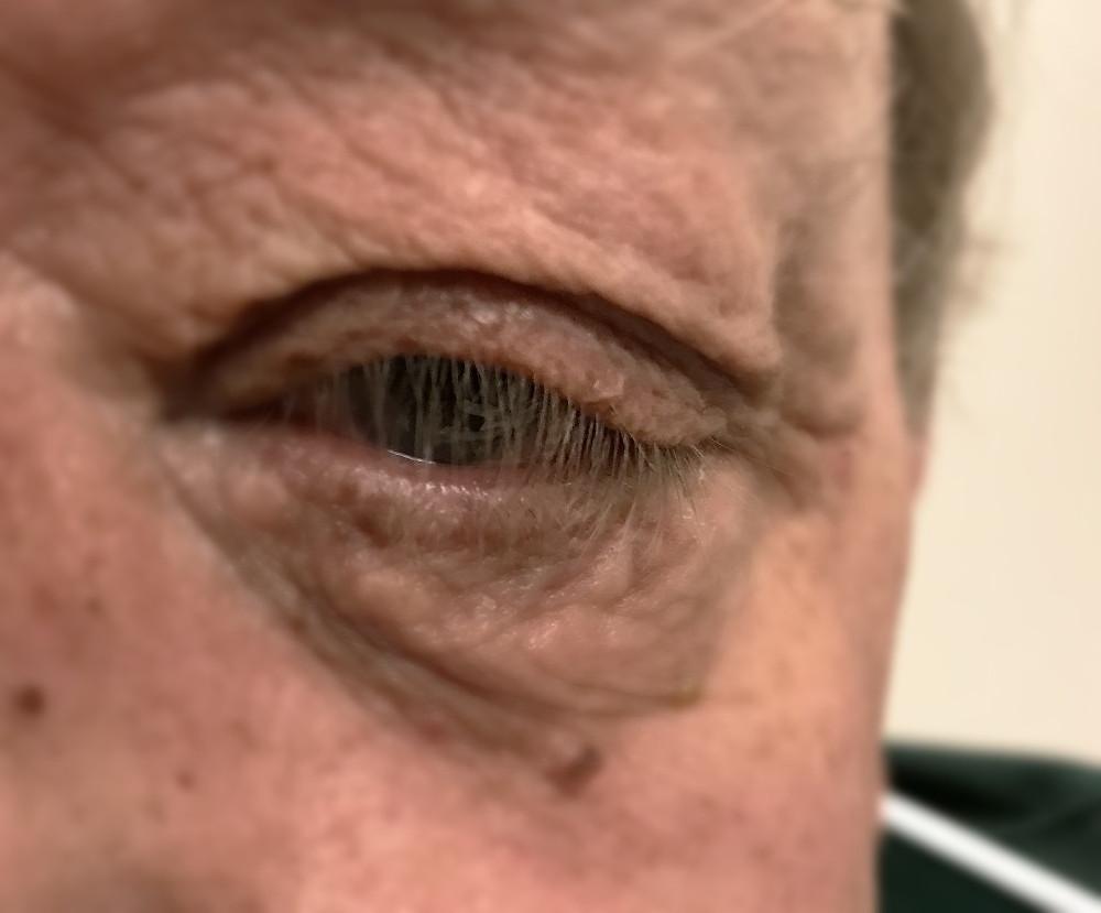 Floppy eyelid