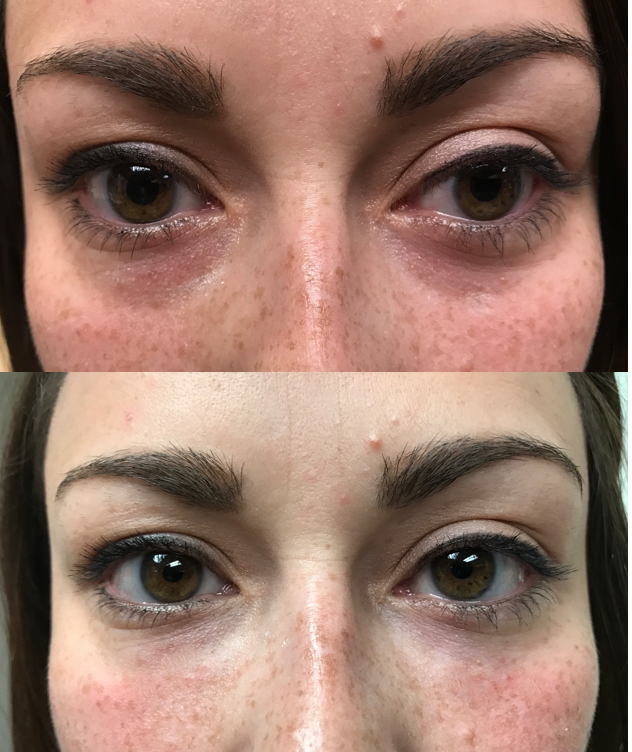 lower eyelid filler