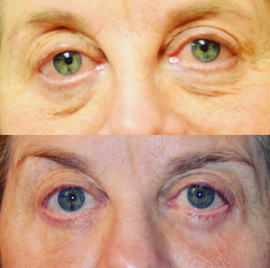 Lower eyebag treatment