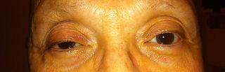 Drooping eyelids before photo