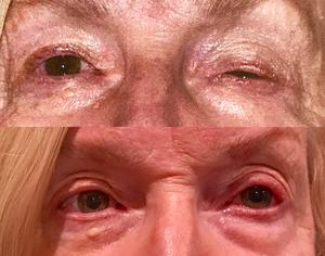 Best eyelid surgeon in Denver
