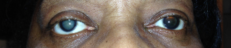 ptosis after cataract surgery
