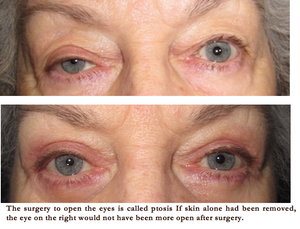 drooping eyelid treatment