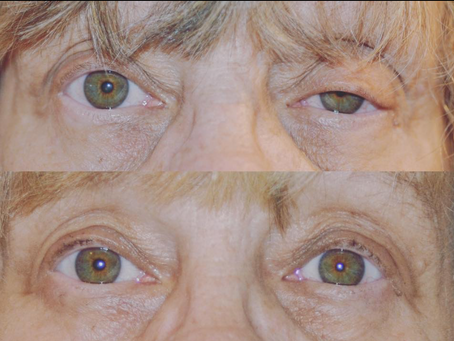 Eyedrops for Eyelid Lifting in Denver. Is it worth it?