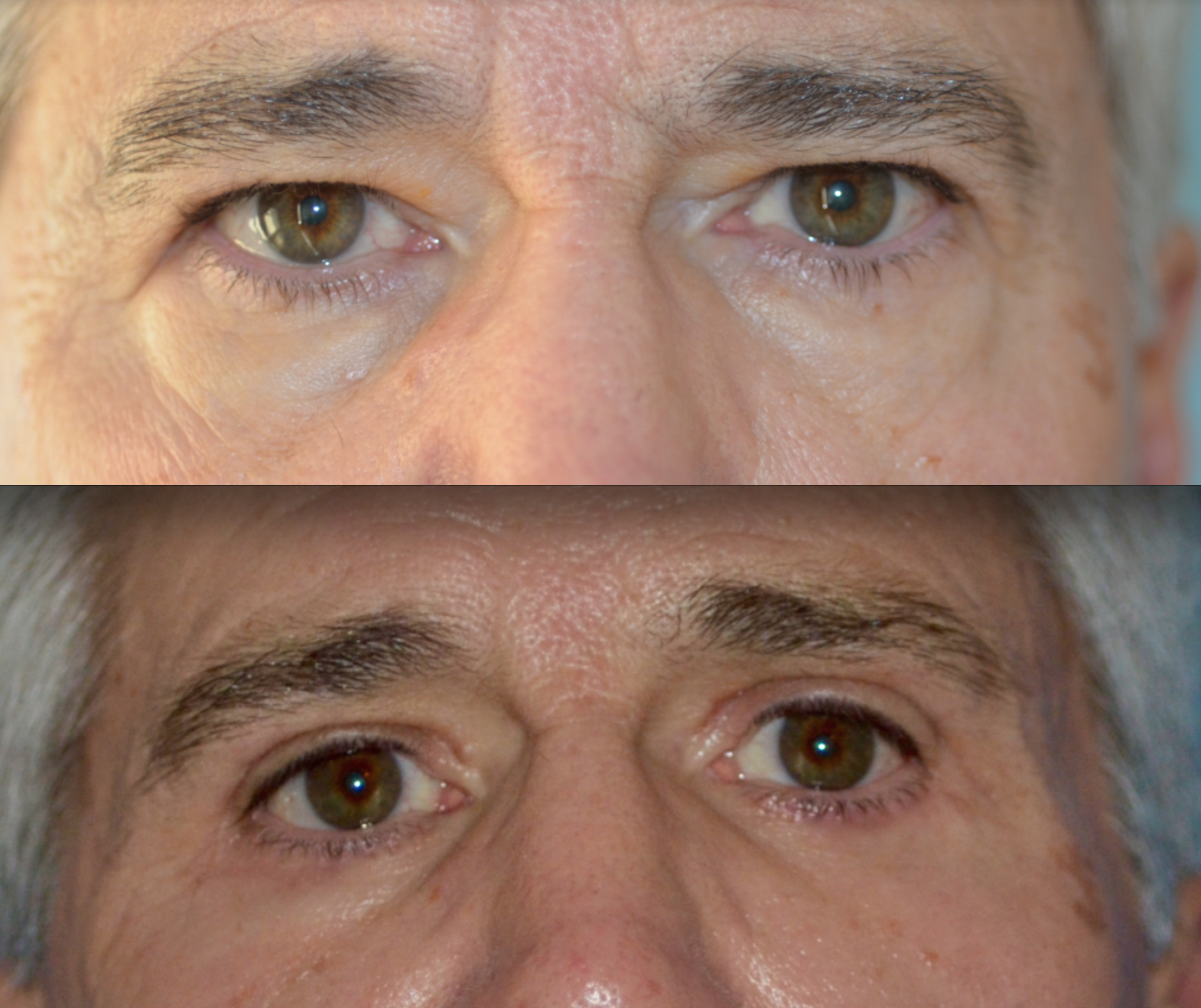 Upper and Lower eyelid blepharoplast