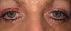 After blepharoplasty photo