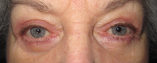 After Surgery result for eyelids