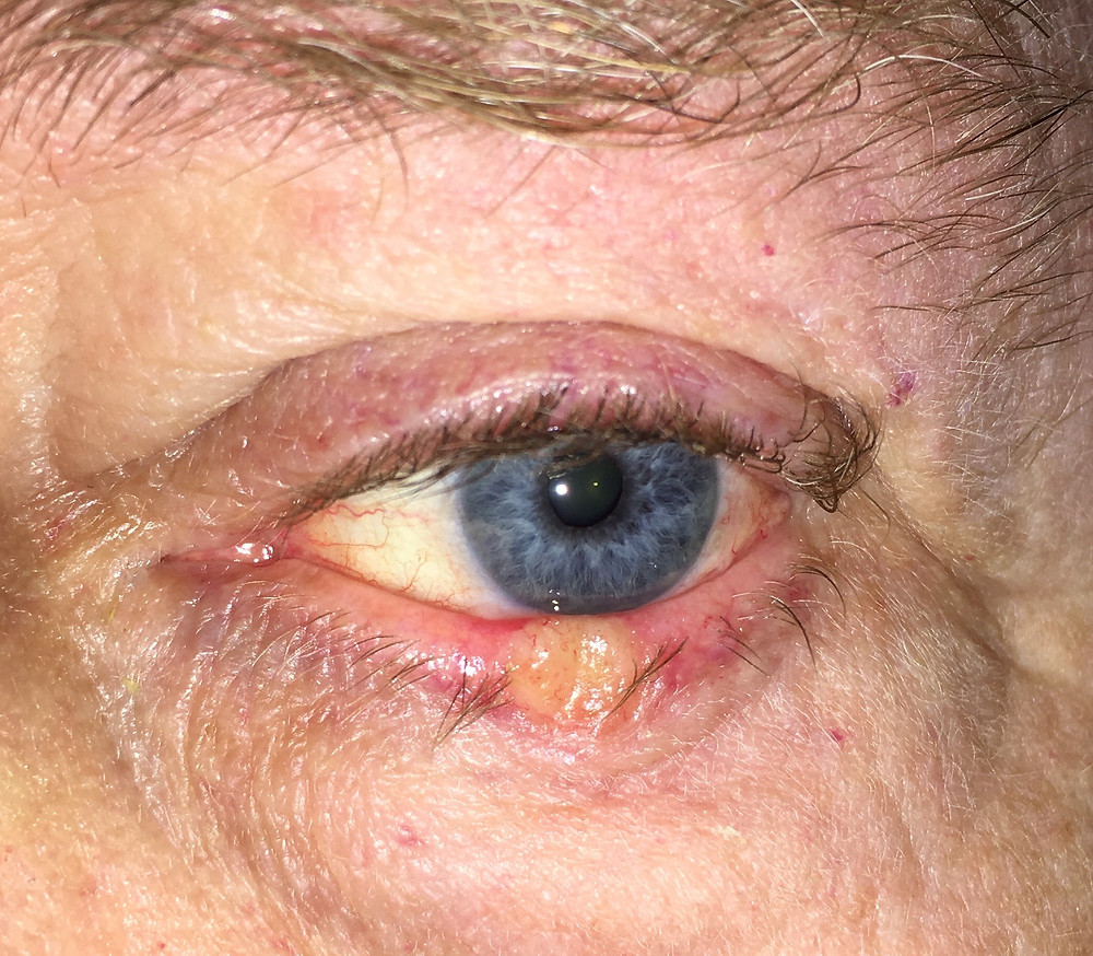 Eyelid Cancer Eagle