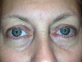 After eyelid surgery photos