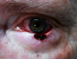 basal cell eyelid denver
