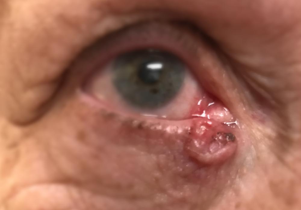 Denver eyelid cancer treatment