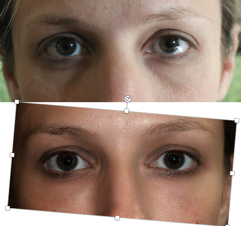 lower eyelid filler denver