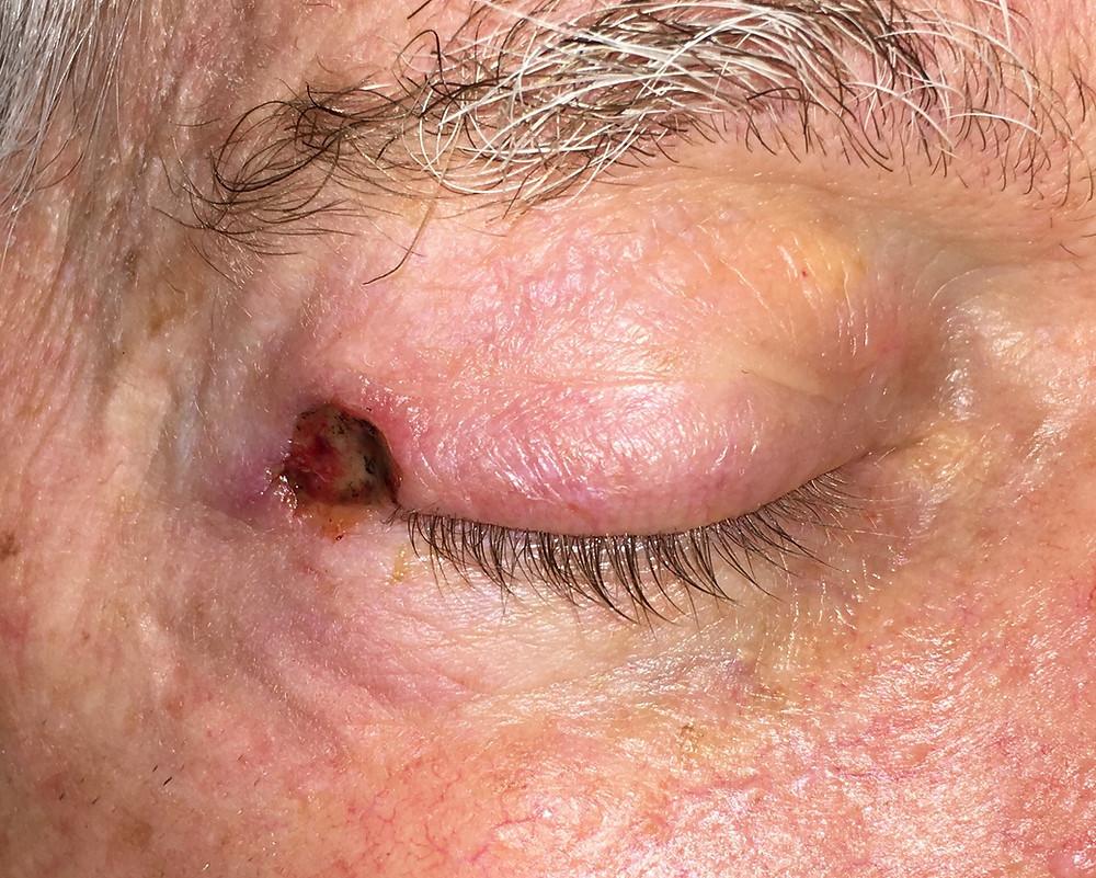 Eyelid Cancer Defect