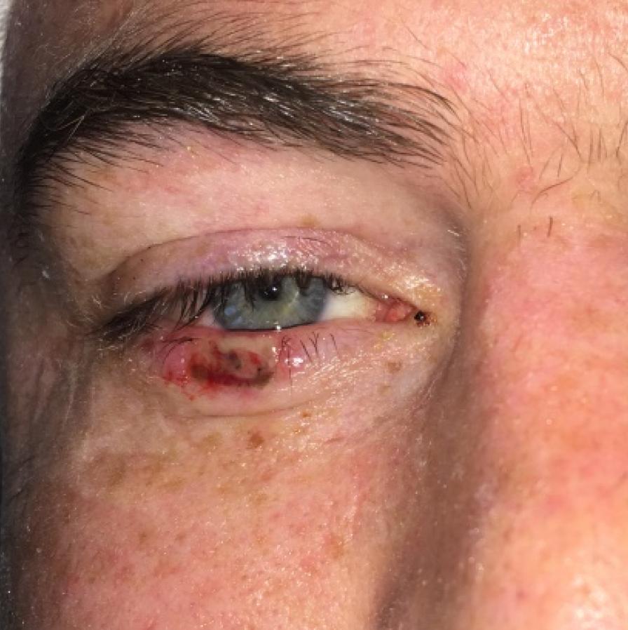 Eyelid cancer denver