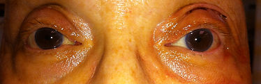After eyelid surgery photo
