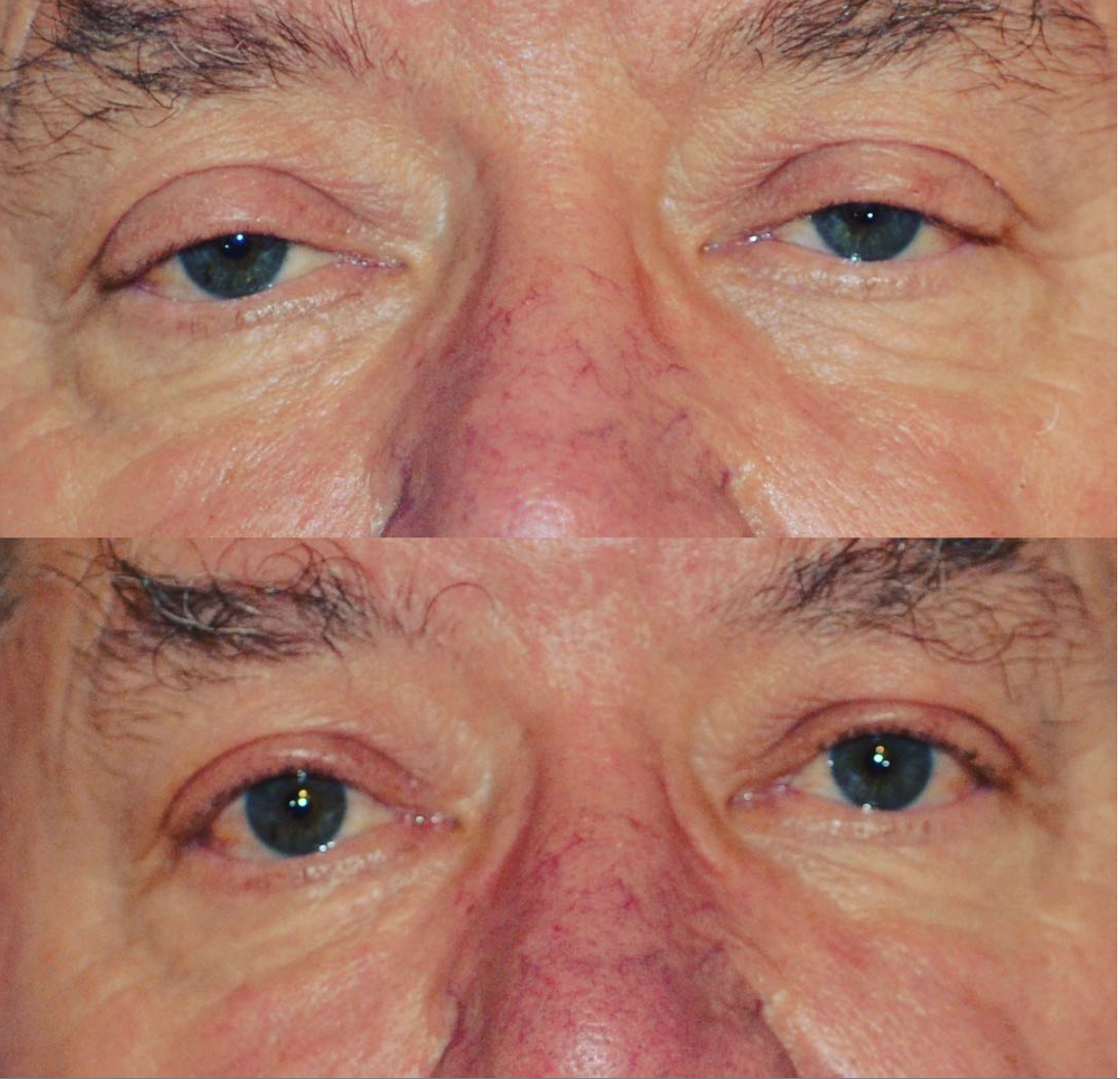 eyelid lift surgery denver
