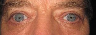 Open eyelids after surgery