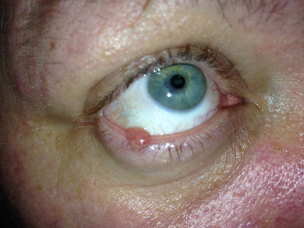 Basal Cell Cancer Eyelid