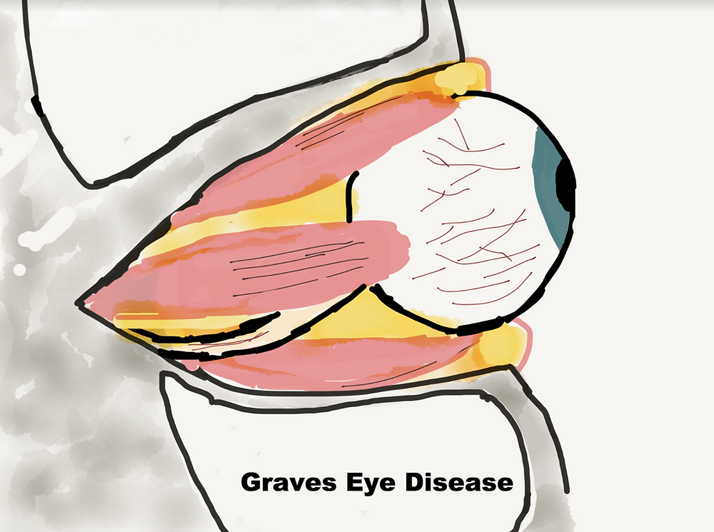 Graves Eye Disease Eye Socket