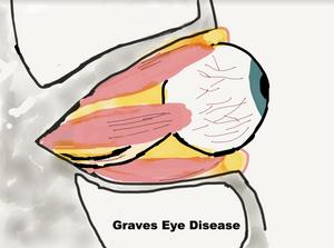 Graves Eye Disease Eye Socket