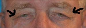 Loose eyelid skin treatment