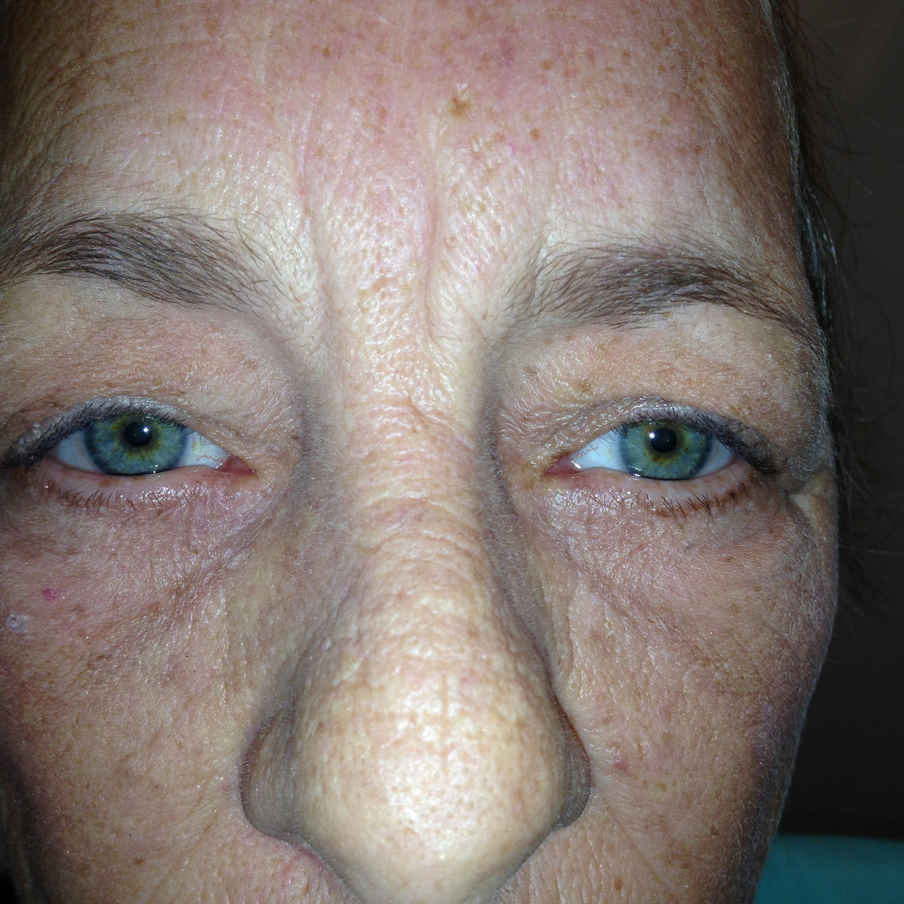 Before eyelid surgery in Denver. Patient has ptosis and excess eyelid skin.