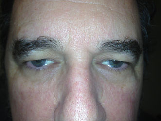 Drooping eyelid before photo