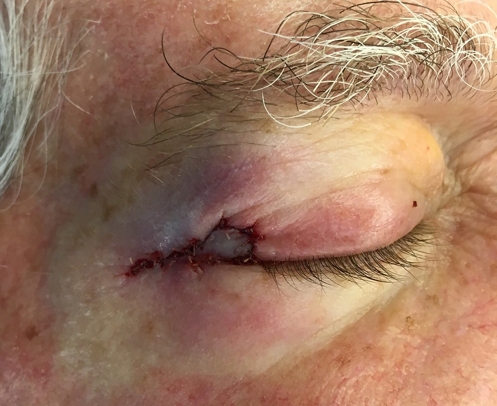 Eyelid Cancer Reconstructed