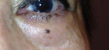 Eyelid Cancer in Denver Colorado