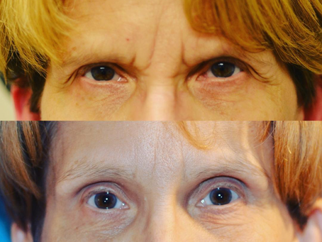 Eyelid Surgery or Eyebrow Lifting: A Denver Eyelid Surgeon discusses the options