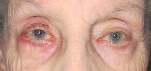Healed eyelids