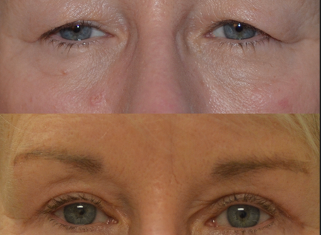 How an upper eyelid blepharoplasty or eyelift can be awesome for you