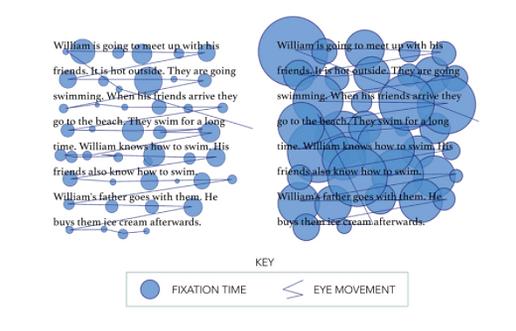 Lexplore Rapid Reading Assessment Image.png