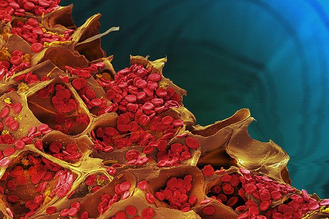 Blood cells on wood.jpg