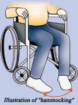 מיבנה אנטומי למניעת סיכול רגליים