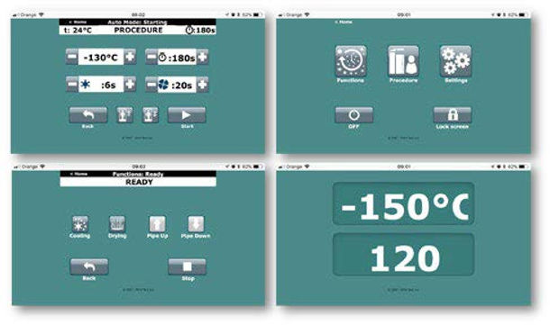 Examples of visualization screens that are displayed on the control display